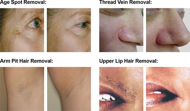 Laser-Treatment-images